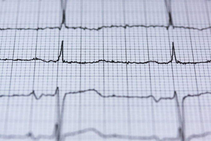 Example of an ecg (not mine)